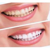 Tiras Blanqueadoras Oral B Dentales De 14unidades Originales