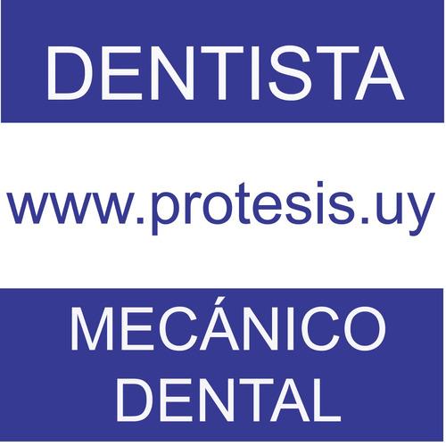 Dentista Mecánico Dental Prótesis Dentales
